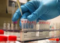 Развернутый анализ крови красноярск правый берег определение рое в анализе крови