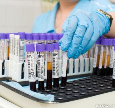 Анализ крови раково эмбриональный антиген Справка 002 о у Марьина роща