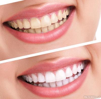 Отбеливание зубов выезд на дом