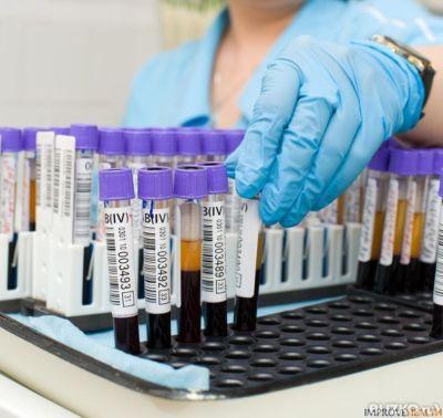 Анализ крови на фолиевая кислота анализ крови-макроцитоз